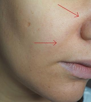 sichtbare Rötungen & Poren